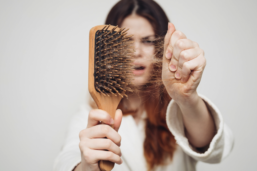 Can Iodine Help With Hair Loss?